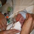 Baby Benjamin begint heftig te schokken. Hij heeft Syndroom van Sturge-Weber… Watte?! Mama Kristel vertelt hier meer over.