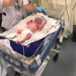 Mara werd geboren, met een afsluiting van de twaalfvingerige darm