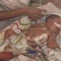 Baby Noa lag aan de beademing, had twee infuuslijnen in haar navel, een sonde, plakkertjes en aan twee kanten een drain.