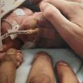 Gaby tikt op het uur de 24 weken aan met haar tweeling, pfff, maar wat er dan allemaal gebeurt had niemand verwacht DEEL II
