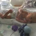 Mijn baby werd geboren met 33 weken, maar zat qua ontwikkeling op 27 weken
