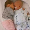 """Mirjam is net bevallen van haar tweeling: """"Ik maak me zorgen en denk dat een kindje Down heeft"""""""