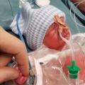 Extreme prematuriteit: Moos woog 820 gram en was slechts 33 centimeter lang
