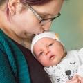 Pasgeboren Simon heeft een gekke bult op zijn oogbal