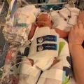 Er was een kans dat onze baby onderweg in de ambulance zou overlijden…