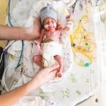 Prematuurbaby Vigo kreeg een hersenbloeding en herseninfarct