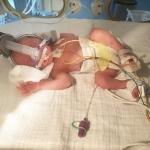 We kijken naar iets wat we nog niet hadden mogen zien: een onrijpe baby