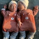 Onze tweeling van 23 weken had 50% kans om te overlijden