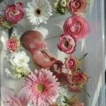 We kiezen ervoor om onze baby met 23.4 weken geboren te laten worden