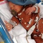 De bevalling startte met 32 weken in een plas bloed…