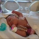 Direct na de bevalling waren er verdenkingen op het syndroom van Down