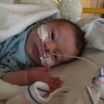 Mijn baby van één week oud vocht tegen het RS-virus