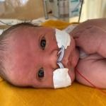 Onze zoon bleek onverwacht bij de geboorte een afwijking te hebben