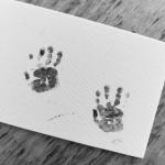 De dokter vertelde dat ze wat zeldzaams bij onze baby hadden gevonden, wat nog niet eens een naam had